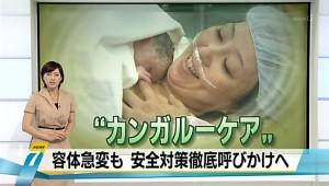 「カンガルーケア」容体急変も 安全対策徹底呼びかけへ - NHK ニュース7
